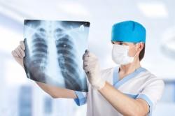 Анализ рентгена легких на туберкулез