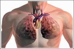 Фармакотерапия туберкулеза легких