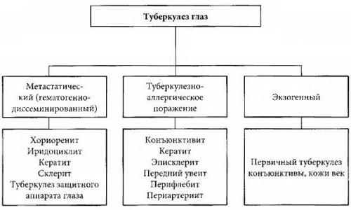 Классификация туберкулеза глаз