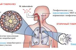 Механизм возникновения и развития туберкулеза