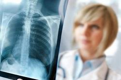 Очаговый туберкулёз лёгких