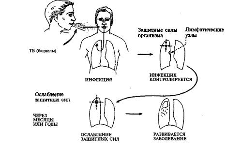 Туберкулез открытая форма 1