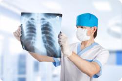 Рентген грудной клетки при туберкулезе