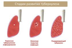 Проявления очагового туберкулеза