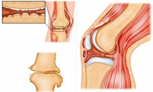 Лечение суставных болей при климаксе