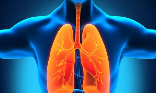 Очаговый туберкулез легких: заразен или нет, лечение в фазе инфильтрации, двухсторонний рентген, симптомы распада верхней доли правого легкого