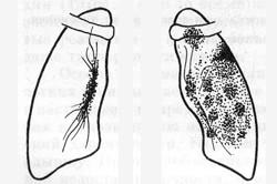 Туберкулезный инфильтрат типа перисциссурита