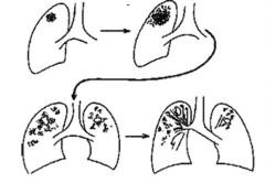 Развитие вторичного туберкулеза у взрослых