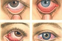 Виды глазного туберкулеза