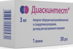 Прививка Манту обязательна или нет: нужно ли делать каждый год?