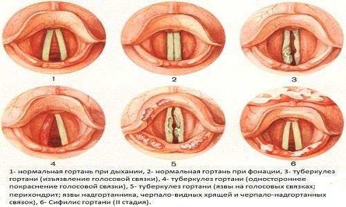 Проявления туберкулеза гортани
