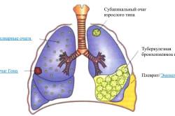 Распространение заболевания в легких