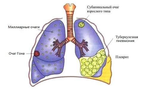 Легкие, пораженные туберкулезом