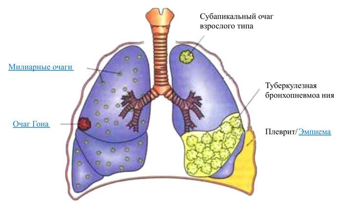 Лечения туберкулеза в домашних условиях у взрослых 64