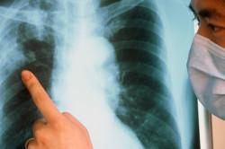 Затемнения на рентгеновских снимках легких пациента
