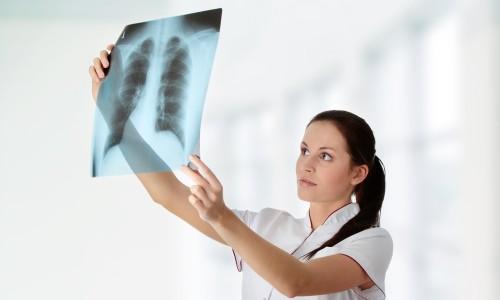 Выявление туберкулеза легких