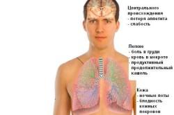 Основные признаки туберкулеза