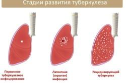 Стадии туберкулеза