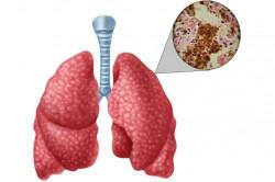 Диагностирование туберкулеза