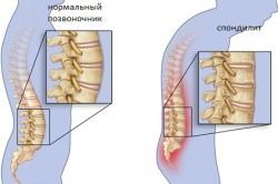 Пример туберкулеза позвоночника