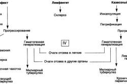 Варианты течения первичного туберкулеза