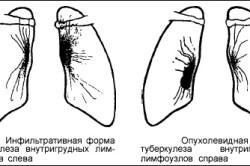 Виды туберкулеза внутригрудных лимфатических узлов