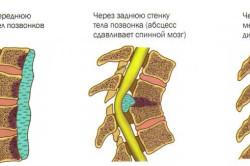 Виды туберкулеза позвоночника