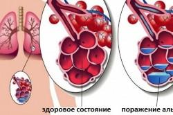 Острая крупозная пневмония