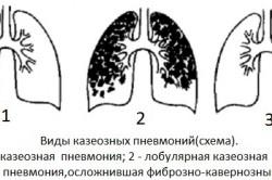 Виды казеозных пневмоний